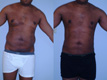 Liposuction abdomen and Flanks 10a